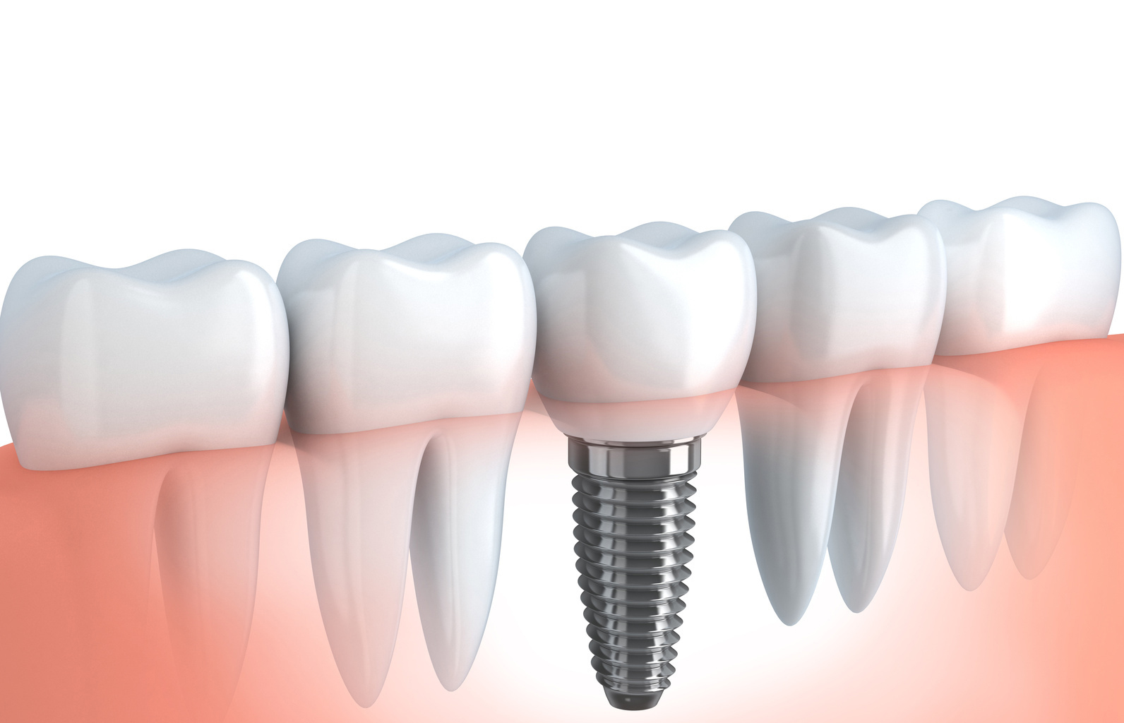 Implantes dentales Oral Prima